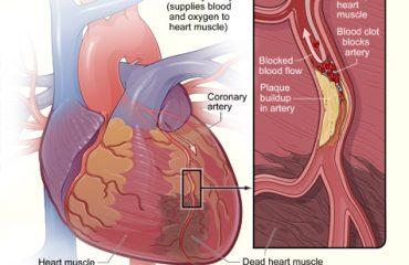 Ce este infarctul miocardic?