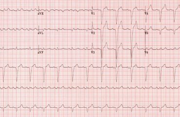 Blocul cardiac de ramura stanga