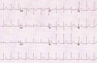 """Rolul """"Testului de efort ECG"""" in protejarea inimii"""